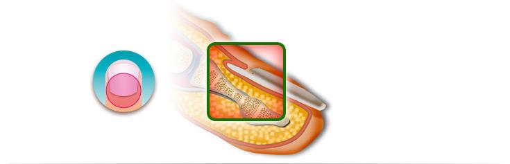 Grafische Darstellung einer Nagelbettentzündung