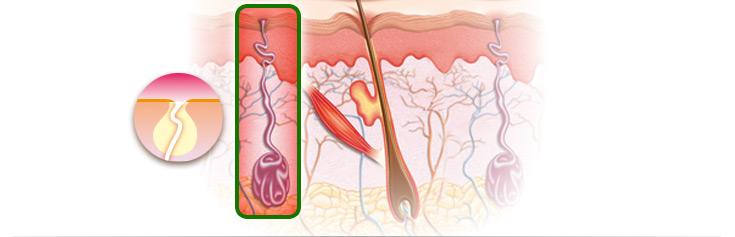 Grafische Darstellung einer Schweißdrüse