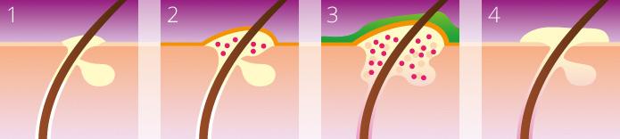Der Prozess einer Hautentzündung - von der Entstehung bis hin zur Heilung